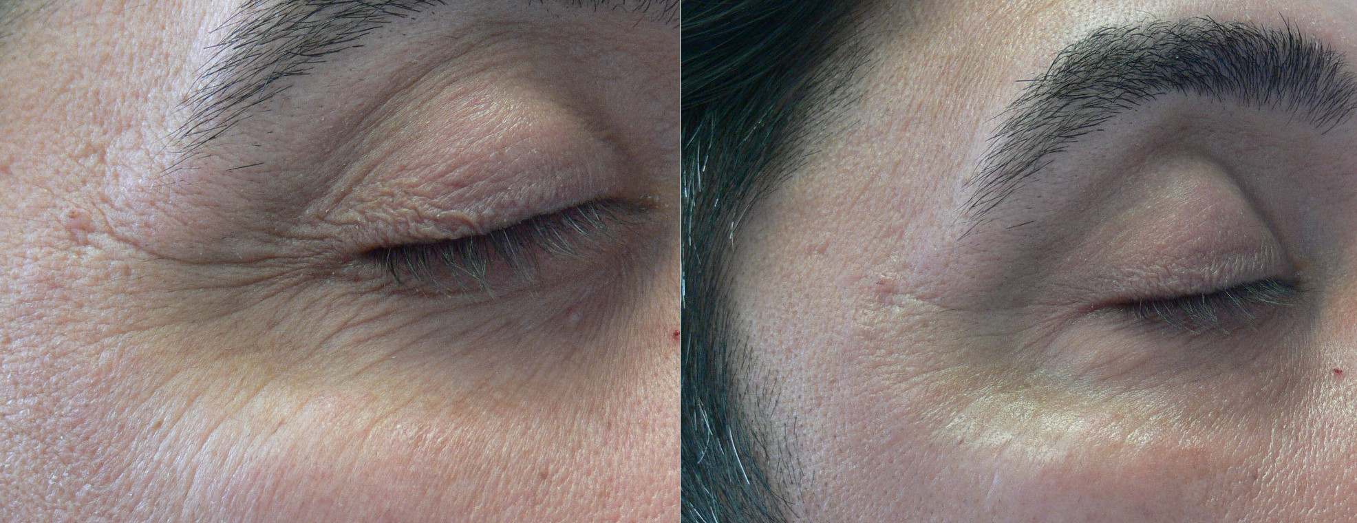 Dr. Lanfermann Ageless Eye Gel