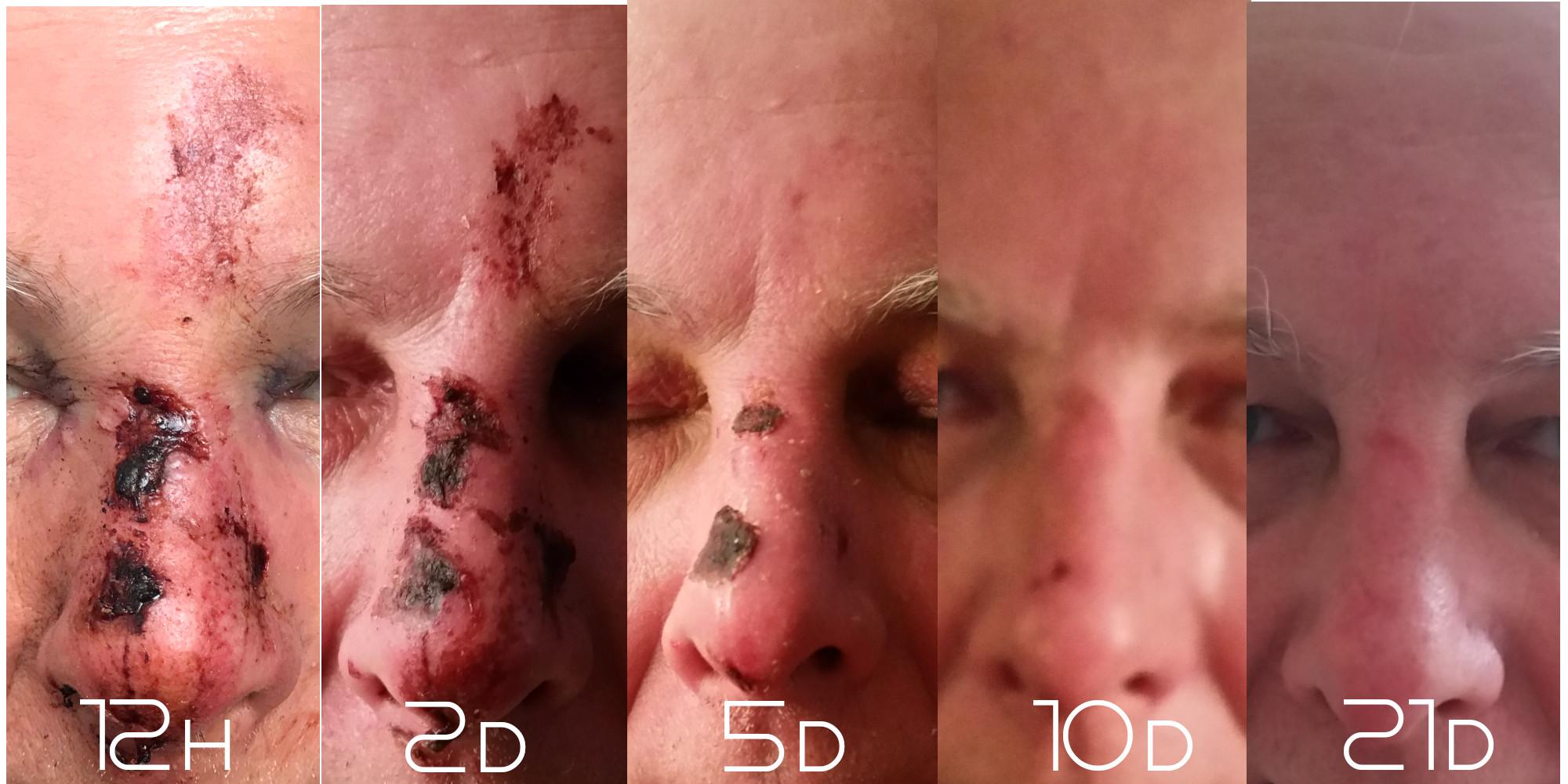 Dr. Lanfermann® Tensidfreies Waschspray pH 12